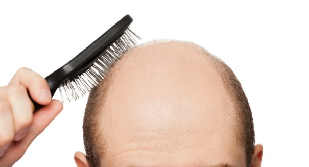 Why is it so hard to cure baldness?