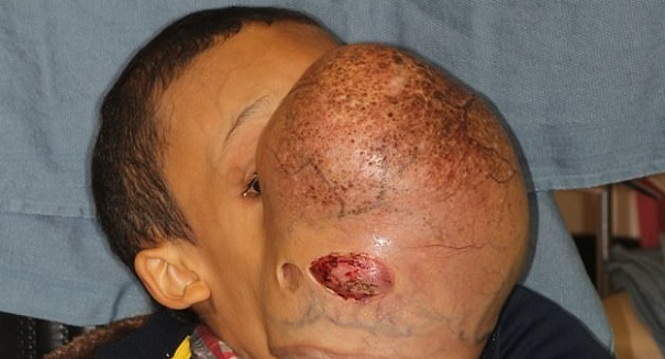 Florida doctors to remove 10-pound tumor from boy's face