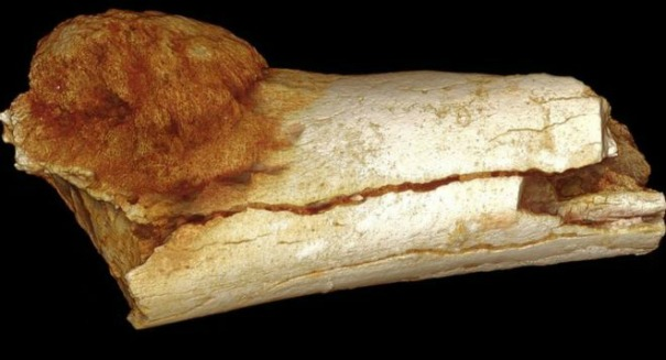 Scientists make shocking discovery on ancient human bone