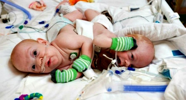 Huge development on conjoined twins in Florida