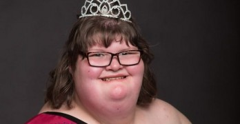 380 lb girl with genetic disorder wins pageant
