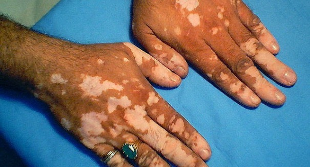 Have scientists found a cure for Vitiligo — with an Arthritis drug?